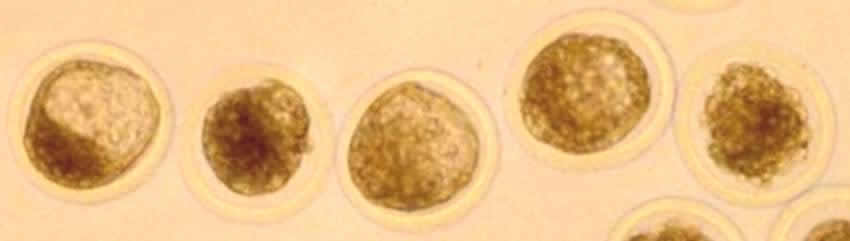 Embryo Flush